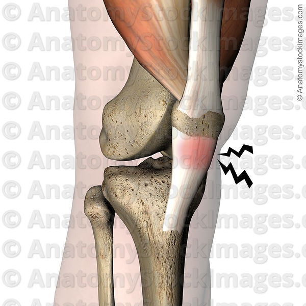 Anatomy stock images knee jumpers knee jumper pain patellar anatomy stock images knee jumpers knee jumper pain patellar ligament tendinitis patella quadriceps tendon tuberositas tibiae front skin ccuart Choice Image