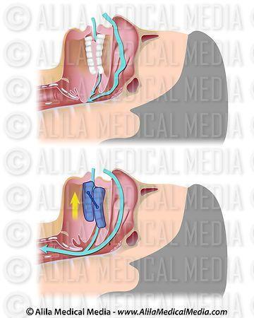 Sleep apnea anatomy