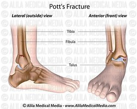 Pott's fracture labeled.