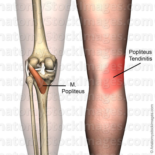 Anatomy Stock Images | knee-musculus-popliteus-muscle-tendinitis ...