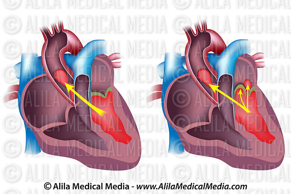 Alila Medical Media | Prolapsus de la valve mitrale | Illustration ...