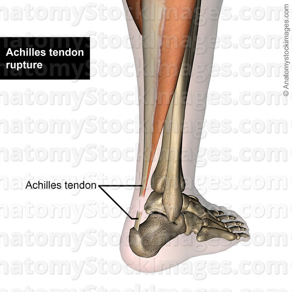 Anatomy Stock Images | lowerleg-achilles-tendon-rupture-back-skin-names