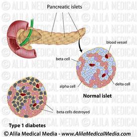 Pancreatic islet normal and type 1 diabetic