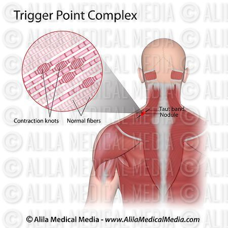 Alila Medical Media | Trigger point complex anatomy. | Medical ...