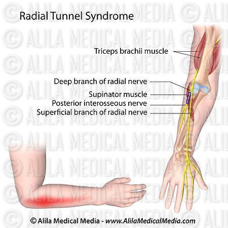 Alila Medical Media | Radial tunnel syndrome | Medical illustration