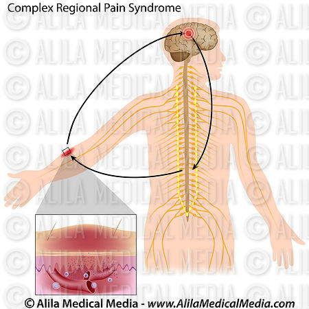 gabapentin complex regional pain syndrome