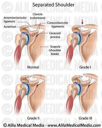 Alila Medical Media | Separated shoulder, labeled diagram. | Medical ...