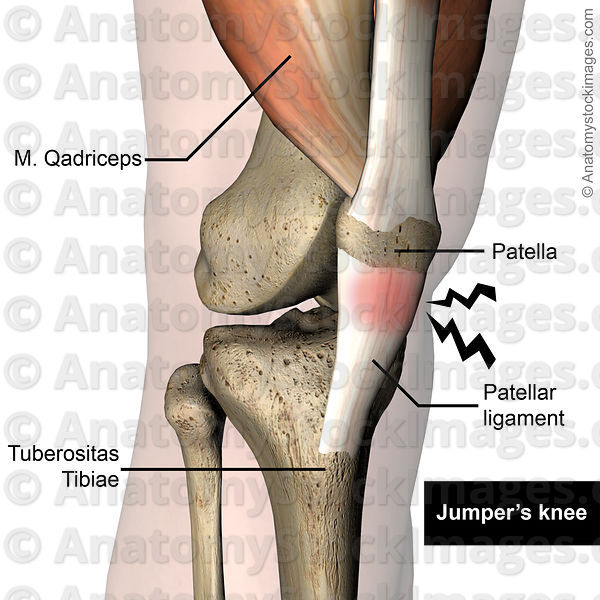 Anatomy Stock Images Knee Jumpers Knee Jumper Pain Patellar