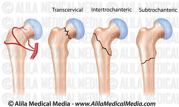 Alila Medical Media | Locations of hip fractures and hip joint blood ...