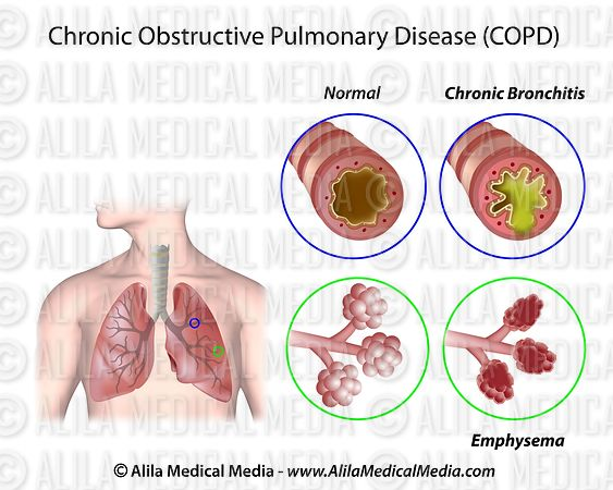 chronic bronchitis and emphysema I what every physician needs to know chronic obstructive pulmonary disease (copd), characterized by emphysema or chronic bronchitis, is a progressive, inflammatory disease that results in airflow limitation with some combination of small airway obstruction and lung destruction copd is the fourth.