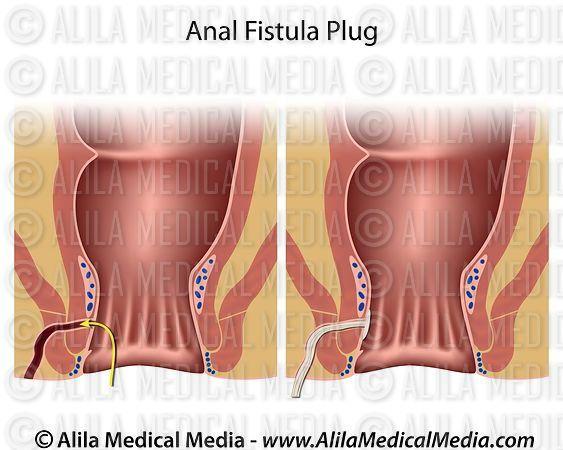 Fistula canine peri anal
