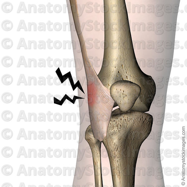 Anatomy Stock Images Knee Tractus Iliotibialis Iliotibial Band