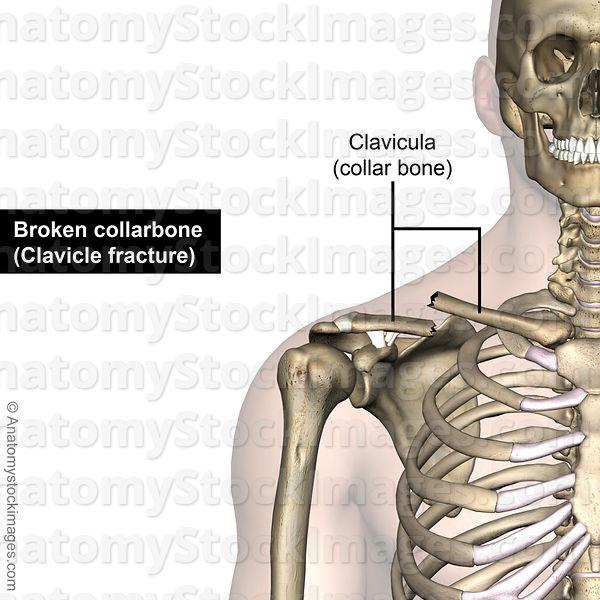 Anatomy Stock Images Shoulder Clavicula Fracture Clavicle Broken
