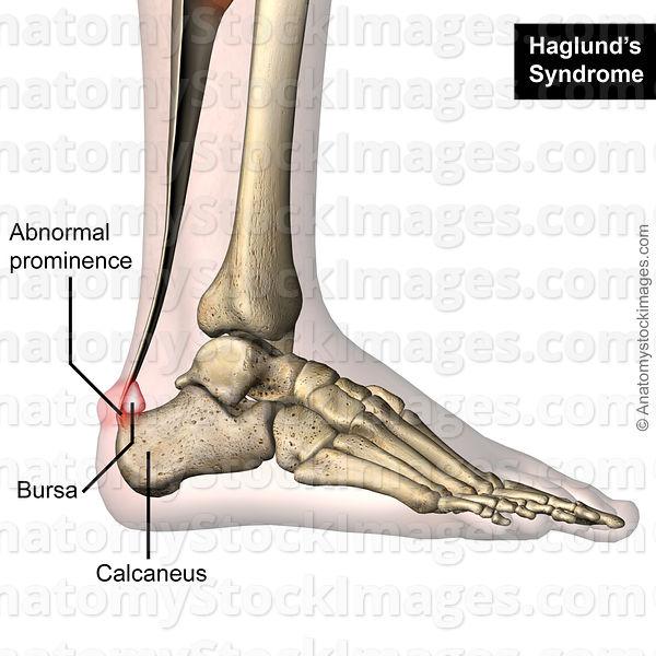 Anatomy Stock Images Ankle Haglund S Syndrome Calcaneus Redness