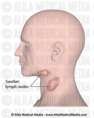 Alila medical media red swollen lymph nodes in lymphadentis red swollen lymph nodes in lymphadentis labeled ccuart Gallery