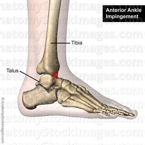 Anatomy Stock Images Ankle Anterior Impingement Bones Tibia Talus