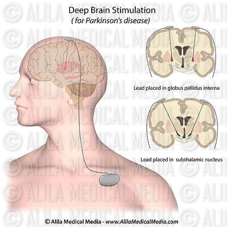 Medicine to increase brain activity