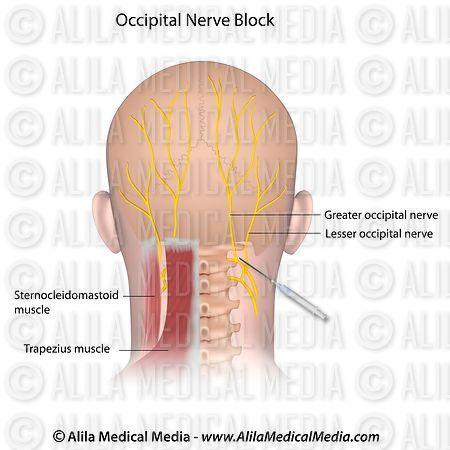 Alila Medical Media   Occipital Nerve Block.   Medical illustration