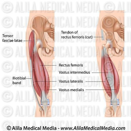 Alila Medical Media | Quadriceps muscle labeled diagram. | Medical ...