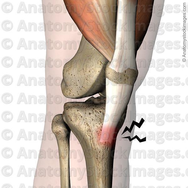 Anatomy Stock Images | knee-osgood-schlatter-pain-patellar-ligament ...