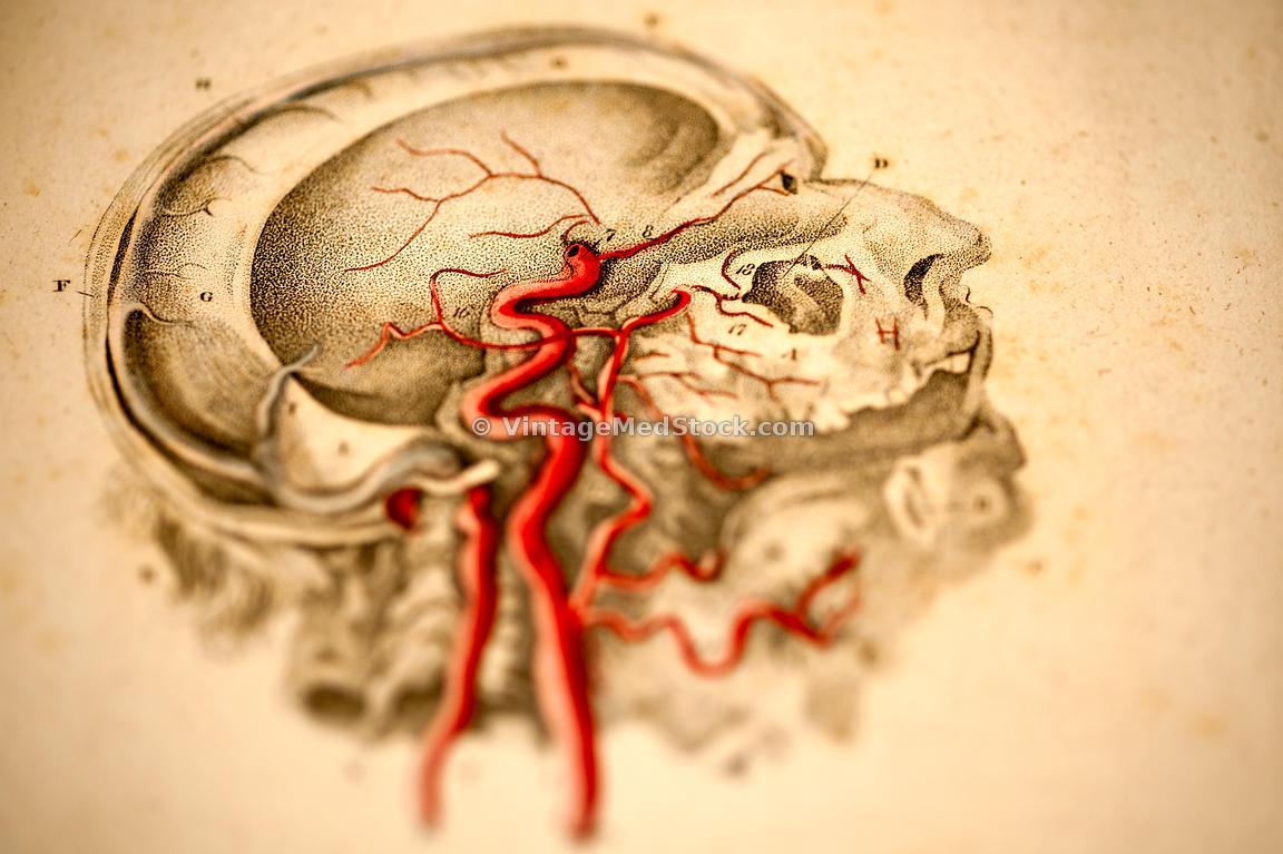 Vintagemedstock Blood Vessels In The Head