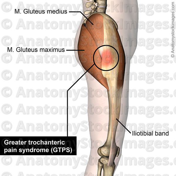 Anatomy Stock Images Hip Greater Trochanteric Pain Syndrome