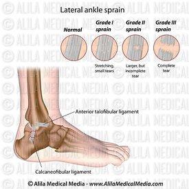 Ankle sprain grading
