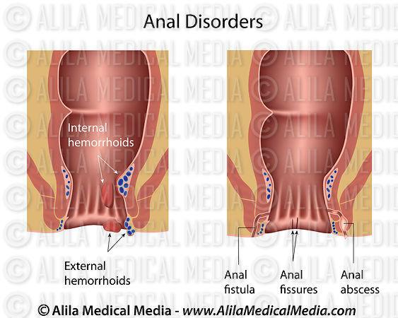 gastroenterologists for anal fissure jpg 1152x768