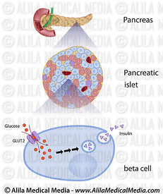 Glucose induces insulin release in beta cells