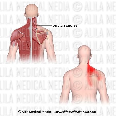 Alila Medical Media | Trigger points and referred pain for the ...