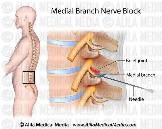 Alila Medical Media | Medial branch block. | Medical illustration
